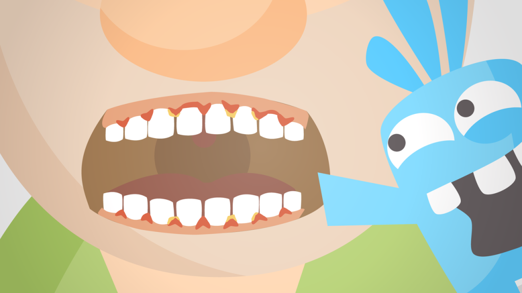 Illustrated image of swollen gums, plaque, and tartar